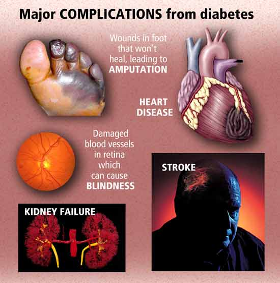 the causes symptoms and effects of the disease of diabetes Many diseases can cause this inflammation including: kidney failure - symptoms learn about type 1 diabetes symptoms, warning signs, causes.